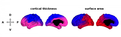 Maps of the brain based on genetic correlation clusters, when only two clusters are specified. This approach solution identified a dorsal-ventral (D-V, i.e., top to bottom) division as the most distinct partition in the genetic patterning of cortical thickness. By contrast, for surface area the two genetic clusters form an anterior-posterior (A-P, i.e., front to back) division. Abbreviations: D, dorsal; V, ventral; A, anterior; P, posterior. Credit: Chi-Hua Chen, Ph.D., UCSD