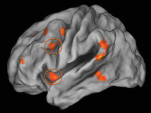 Childhood poverty impacted how much the two regions of the prefrontal cortex (as shown in orange circles) were engaged during emotion regulation. (Credit: University of Illinois at Chicago College of Medicine)