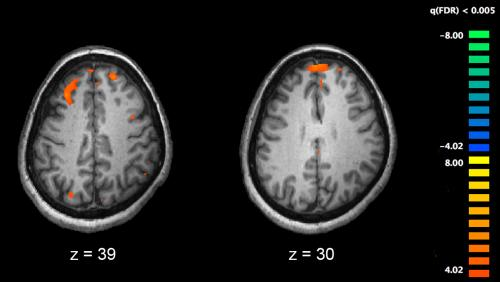 Functional magnetic resonance imaging (fMRI) and other brain imaging technologies allow for the study of differences in brain activity in people diagnosed with schizophrenia. The image shows two levels of the brain, with areas that were more active in healthy controls than in schizophrenia patients shown in orange, during an fMRI study of working memory. Credit: Kim J, Matthews NL, Park S./PLoS One.