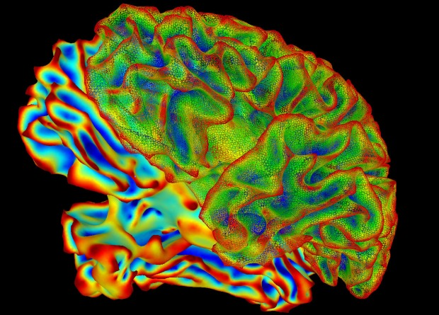 A multi-colored image of a brain for imaging research. Researchers from Northwestern University released a study showing that the memories can adapt. Scientists used a functional MRI and eye tracking as part of their research.