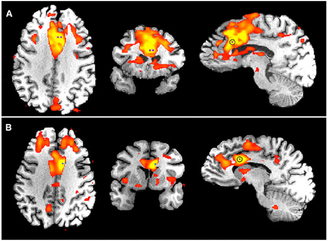 The salience network, highlighted here in two epilepsy patients, is thought to mediate our response to important internal or external signals, such as pain or the sound of a siren. Image: Parvizi et al. Neuron 2013