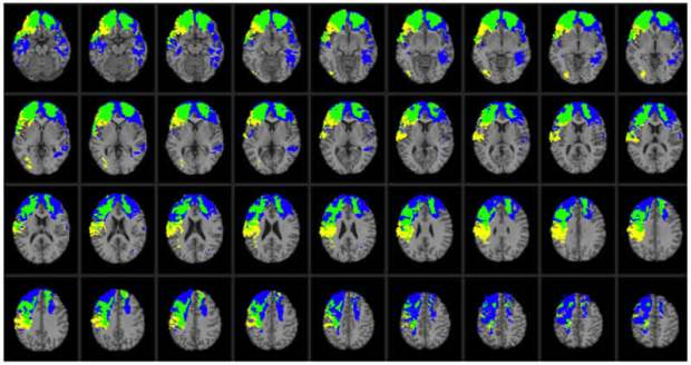 Lesion overlap map illustrating common and distinctive brain regions for Val/Val (blue) and Val/Met (yellow) genotype patients. Overlap between Val/Val and Val/Met genotype patients is illustrated in green. In each axial slice, the right hemisphere is on the reader's left. Credit Barbey et al./PLOS ONE.