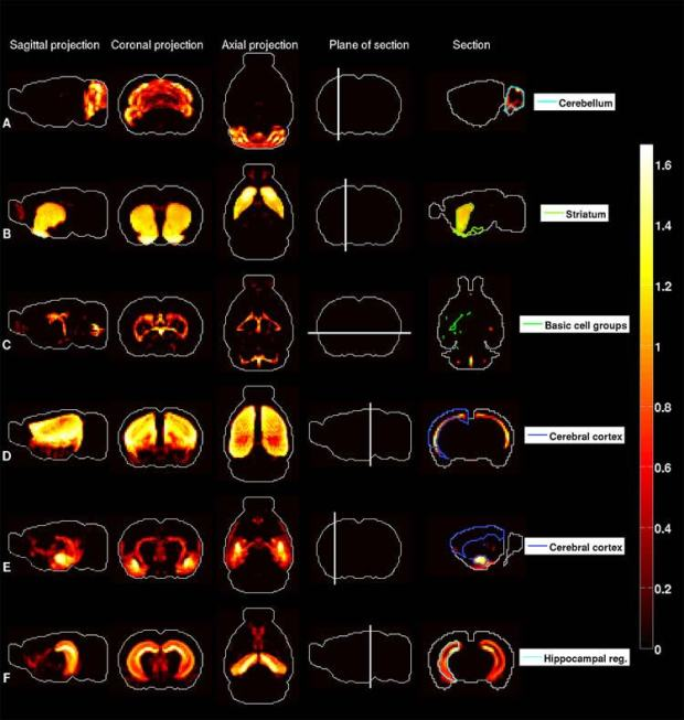neuronal-heat-maps-in-brain