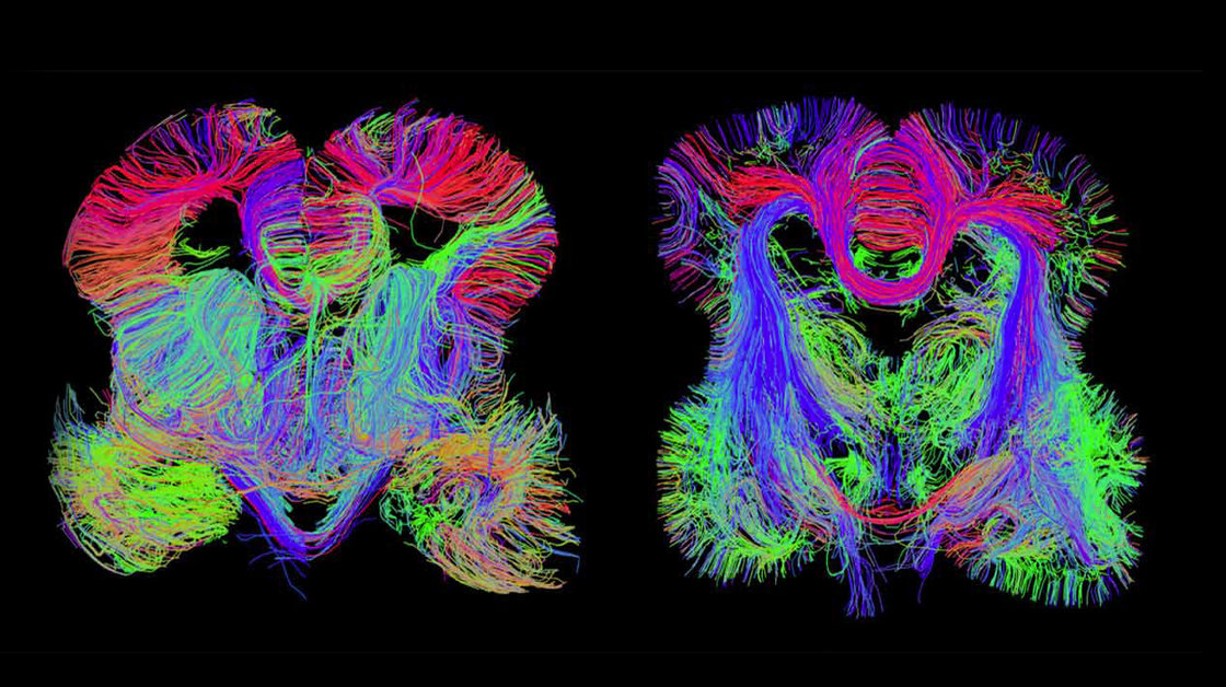 Images of the developing fetal brain show connections among brain regions.  Allen Institute for Brain Science and Bruce Fischl, Massachusetts General Hospital
