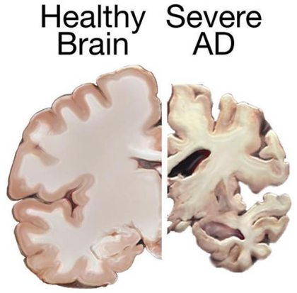 Earlier research showed that progranulin levels were elevated near plaques in the brains of patients with Alzheimer's disease, but it was unknown whether this effect counteracted or exacerbated neurodegeneration. This image is for illustrative purposes only. Credit NIH.