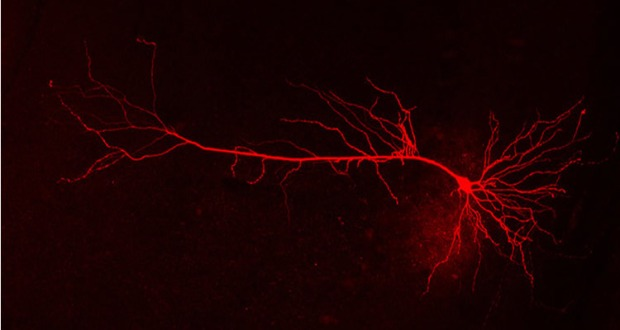 Nerve cells communicate with each other via intricate projections. In brain diseases such as Alzheimer's and Parkinson's these extensions atrophy, thereby causing connectivity problems. Credit DZNE/Detlef Friedrichs.