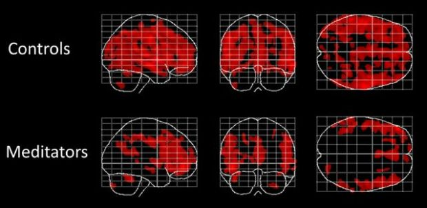 Brain scans of meditators and non-meditators. Areas of the brain affected by aging (in red) are fewer and less widespread in people who meditate, bottom row, than in people who don't meditate. Negative correlations between local gray matter and age. Displayed are maximum intensity projections superimposed onto the SPM standard glass brain (sagittal, coronal, axial). Shown, in red, are significant negative age-related correlations within controls (top) and meditators (bottom). Significance profiles are corrected for multiple comparisons via controlling the family-wise error (FWE) rate at p ≤ 0.05. Note the less extended clusters in meditators compared to controls. Credit: Frontiers in Psychology.