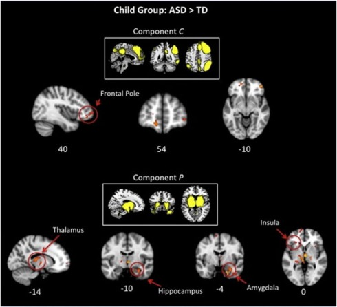 age-brain-related-changes-autism