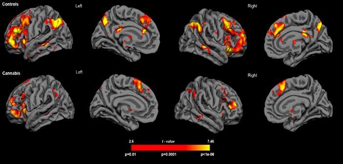 Weekly Neuroscience Update