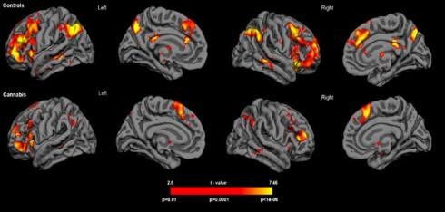 Brain-scan-images-by-Hospital-Sant-Pau-702x336