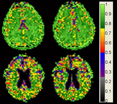 Brain cell density remains constant with age among cognitively normal adults. (Courtesy of Dr. Keith Thulborn)