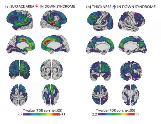 Reductions in cortical surface area and increases in cortical thickness in Down syndrome relative to typical controls. Panel A shows that the cortex surface area is lower in Down syndrome; panel B shows that the cortex is thicker in Down syndrome brains. Small red circles indicate the approximate locations where cortical surface area and thickness were most different between brains of participants with Down syndrome and brains of typically developing participants. Image credit: Lee et al., National Institute of Mental Health