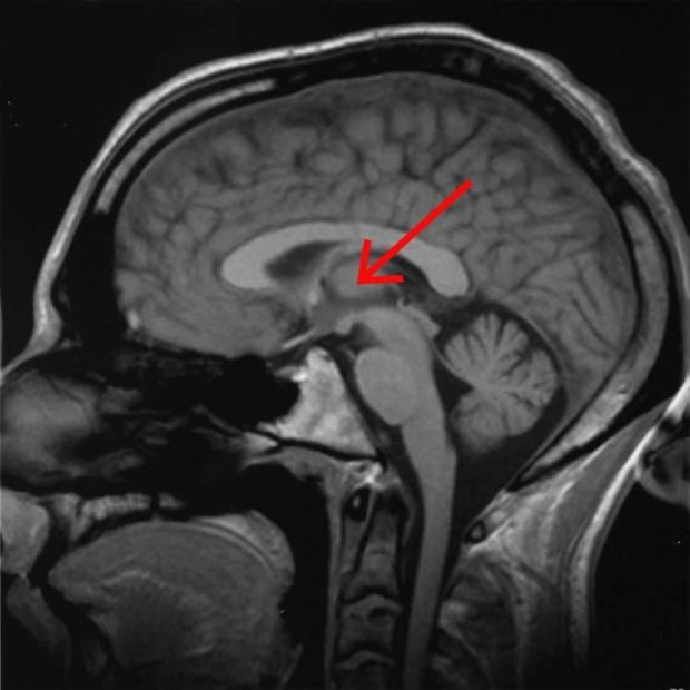 The research revealed that sounds that came from the left were processed in the right inferior colliculus and thalamus and vice versa. Image is for illustrative purposes only. Credit: AxelBoldt.