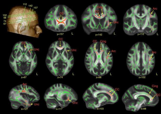 autism-men-neuroimaging