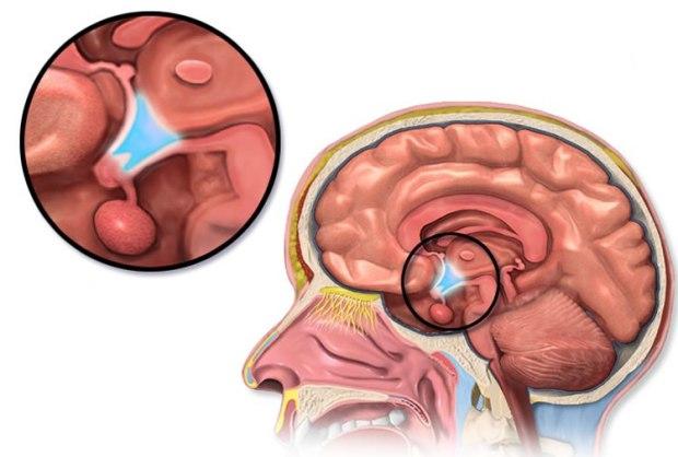 hypothalamus-genetics-obesity