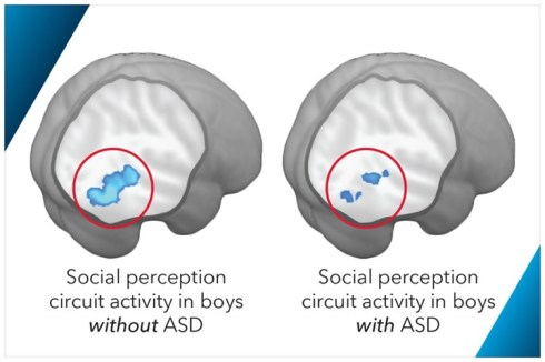 autism-boys-brain-scan