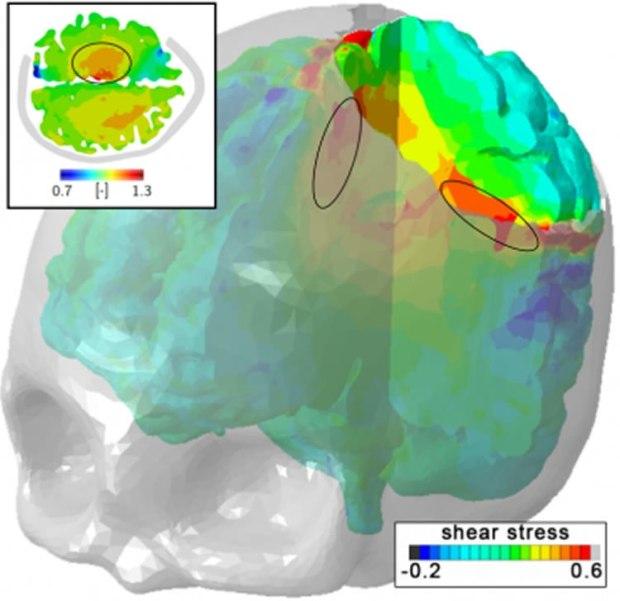 mri-math-brain-damange-neurosciencenews.jpg