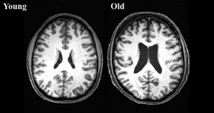 aging-sharpness-neuroscinencew.jpg