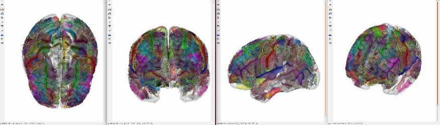 neuroimaging-asd-model-neuroscineneews.jpg