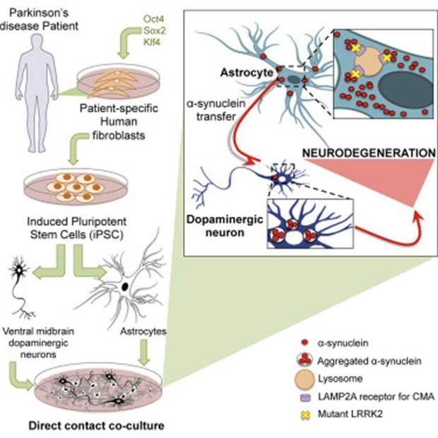 glial-cells-parkinsoins-neurosciencnewes (1).jpg
