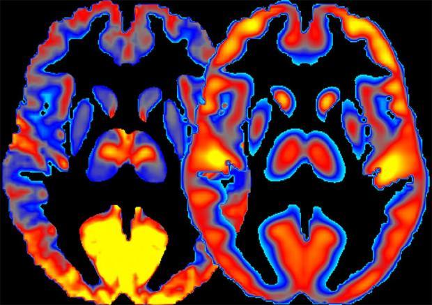 20190304-brain-niaaa.jpg